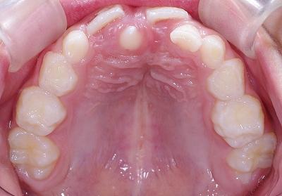 上顎正中過剰歯・円錐歯2.jpg