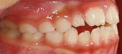 舌癖による開口2~2-2.jpg