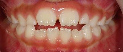 舌癖による開口2~2ー4.jpg