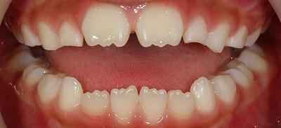 舌癖による開口2~2ー5.jpg