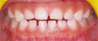 舌癖改善開口改善1.jpg