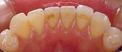 前歯のステイン3.jpg