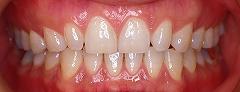 前歯のステイン1.jpg