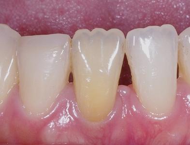 ウォーキングブリーチ・下顎前歯1.jpg