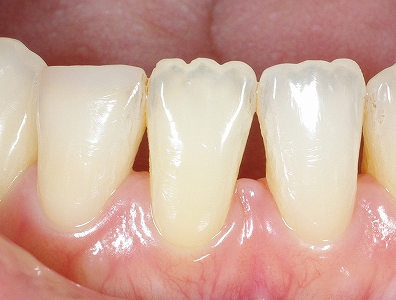 ウォーキングブリーチ・下顎前歯2.jpg