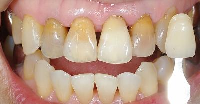 上顎変色歯ウォーキングブリーチ80代.jpg
