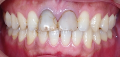 汚れた前歯を白く美しくー1.jpg