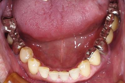 奥歯のブリッジをジルコニアに3.jpg