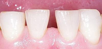 下顎前歯隙間コンポジットレジン1.jpg