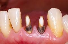 下前歯2本セラミック1.jpg