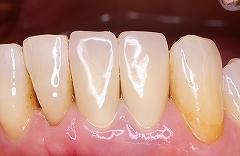 下前歯2本セラミック2.jpg