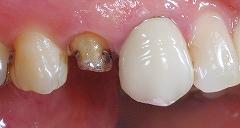銀歯が取れたので白い歯に1.jpg