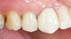 銀歯が取れたので白い歯に3.jpg