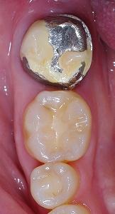欠けて金属むき出しの歯1.jpg