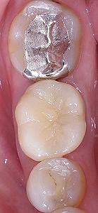 欠損の著しい大臼歯をE-max3.jpg