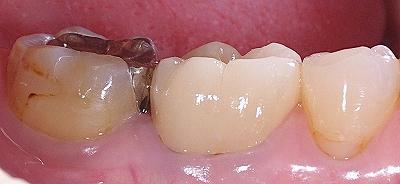 欠損の著しい大臼歯をE-Max4.jpg