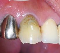 犬歯のセレック1.jpg