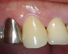 犬歯のセレック2.jpg