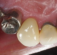 犬歯のセレック4.jpg