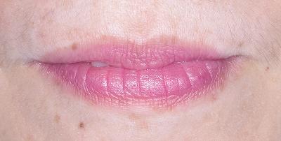 口唇から前歯はみ出した2.jpg