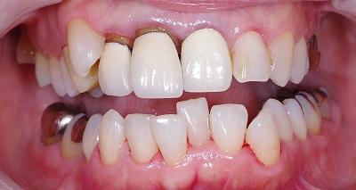 口唇から前歯はみ出した3.jpg