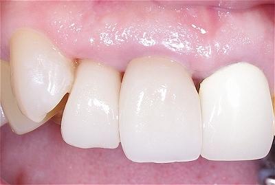 口唇から前歯はみ出した4.jpg