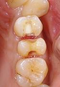 上顎小臼歯をセラミックで修復1.jpg
