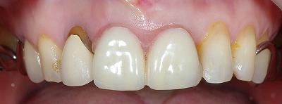 上顎前歯2本義歯3.jpg