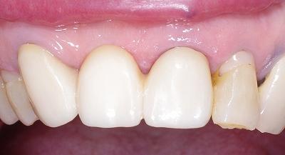上顎前歯ジルコニアBr70代2.jpg