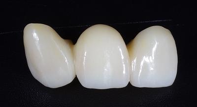 上顎前歯ジルコニアBr70代4.jpg