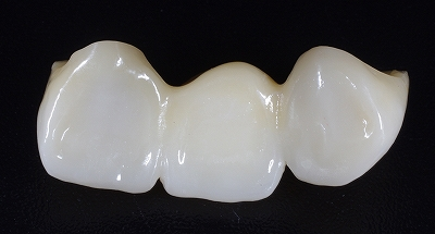 上顎前歯ジルコニアBr70代5.jpg