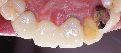 上顎前歯ジルコニアBr70代男性3.jpg