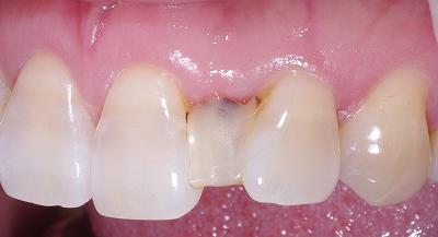 上顎前歯のスペース余剰1.jpg