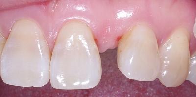 上顎前歯のスペース余剰2.jpg
