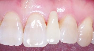 上顎前歯のスペース余剰3.jpg
