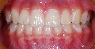 上顎側切歯先端切痕1.jpg