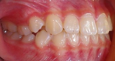 上顎側切歯先端切痕2.jpg