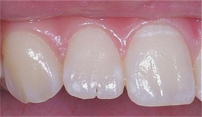 上顎側切歯先端切痕3.jpg