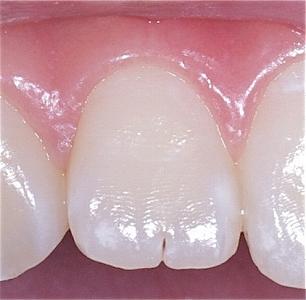 上顎側切歯先端切痕4.jpg