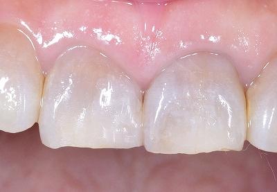上顎中切歯先端破折術後・.jpg
