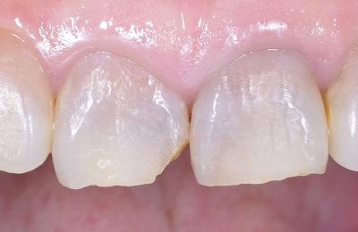上顎中切歯先端破折術前・.jpg