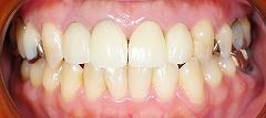 上前歯4本セラミック2.jpg