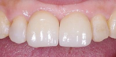 前歯のすき間をセラミックベニア2.jpg