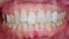 前歯の凹凸を1.jpg