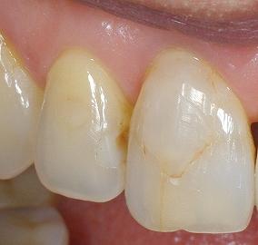 前歯の表層虫歯1.jpg