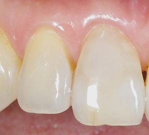 前歯の表層虫歯2.jpg