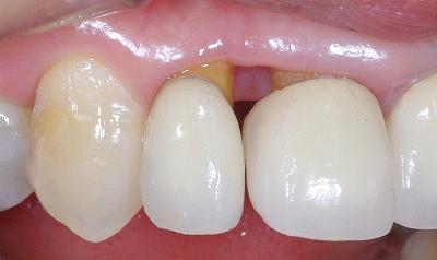 前歯歯肉退縮6-4.jpg