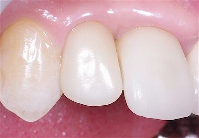 前歯歯肉退縮6-6.jpg
