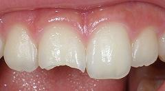 前歯先端が欠けて来院、即日治療1.jpg