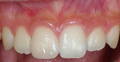 前歯先端が欠けて来院、即日治療2.jpg